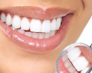 Blanqueamiento dental